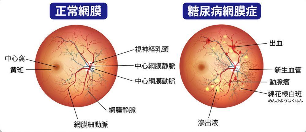 糖尿病網膜症|盛岡のたかはし眼科